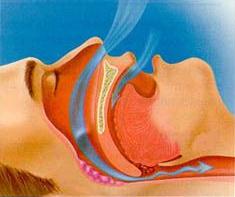 airflow during snoring